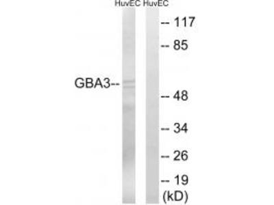 Anti-GBA3 Antibody
