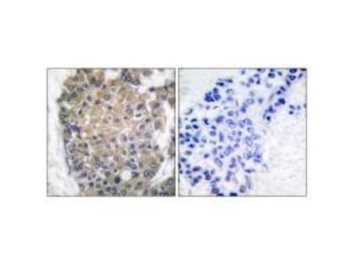 Anti-Keratin 17 Antibody