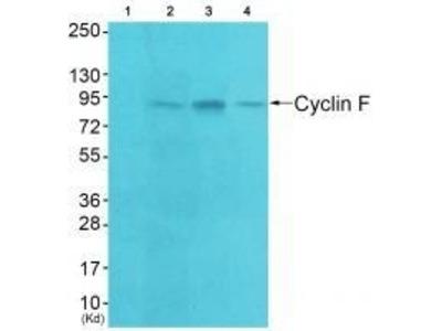 Anti-Cyclin F CCNF Antibody