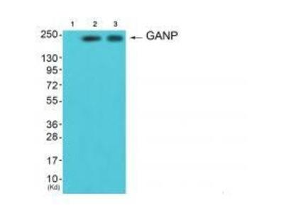 Anti-GANP Antibody