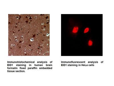 Anti-EID1 Antibody