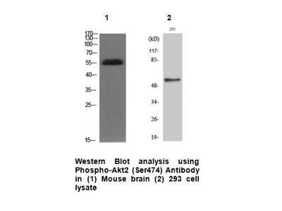 Phospho-Akt2 (Ser474) Antibody