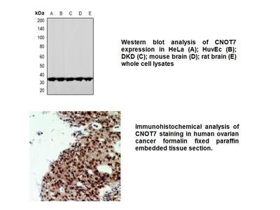 Anti-CNOT7 Antibody