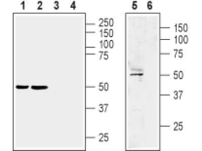 Anti-LPAR1 (EDG2) (extracellular) Antibody
