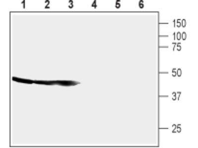 Anti-CRF1 (CRHR1) (extracellular) Antibody