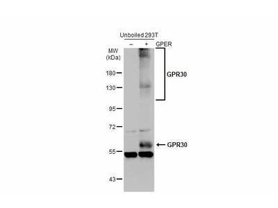 Anti-GPR30 antibody [C2C3], C-term