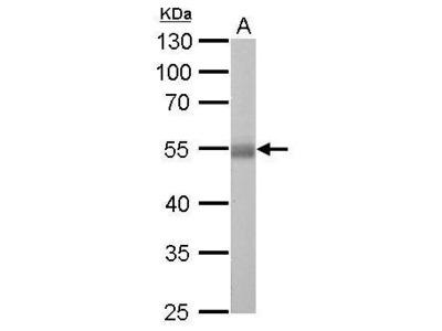 Anti-ALDH1A1 antibody