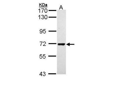 Anti-PPIL2 antibody