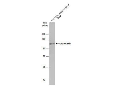 Anti-Autotaxin antibody