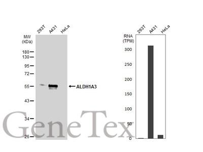 Anti-ALDH1A3 antibody [N2C2], Internal