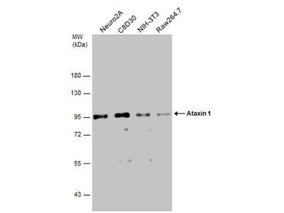 Anti-Ataxin 1 antibody