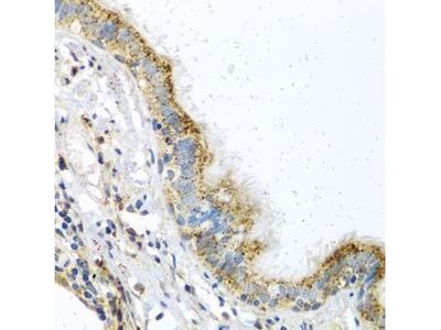 Anti-ATPIF1 antibody
