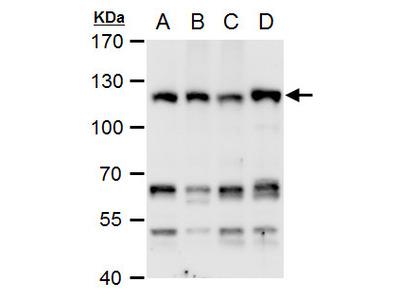 Anti-CHD1L antibody