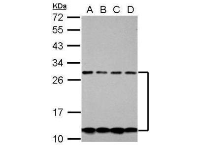Anti-CSH2 antibody