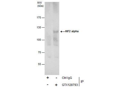 Anti-HIF2 alpha antibody