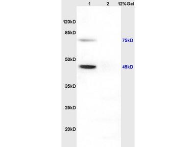 Anti-NP1 antibody