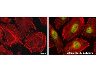 Anti-HIF2 alpha antibody [GT125]