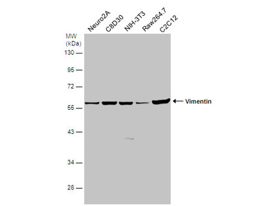 Anti-Vimentin antibody