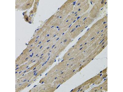 Anti-ALDH9A1 antibody