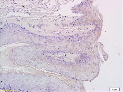 Anti-CXCR3 antibody
