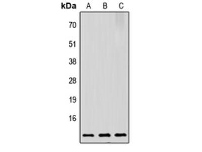 Anti-PTMA antibody