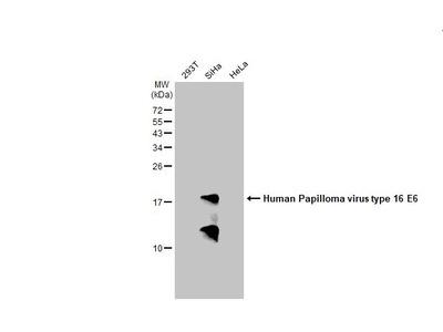 Anti-Human Papilloma virus type 16 E6 antibody