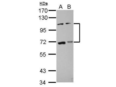 Anti-ADAMTS5 antibody