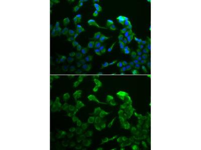 Anti-C1R antibody