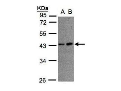 Anti-MBNL3 antibody [N1C3]