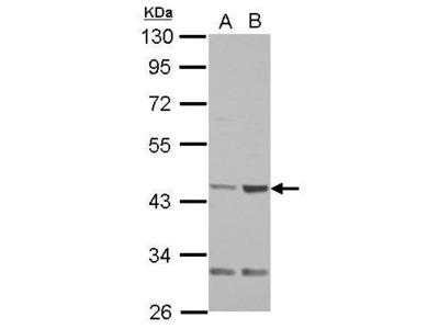 Anti-QTRT1 antibody