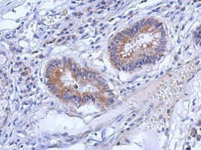 Anti-ZNF645 antibody [N2C3]