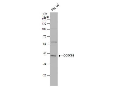 Anti-CCDC92 antibody