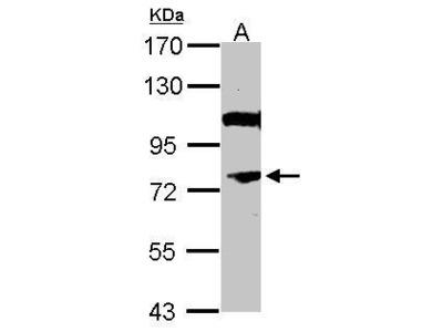 Anti-NR4A3 antibody