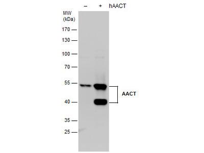 Anti-alpha 1 Antichymotrypsin antibody