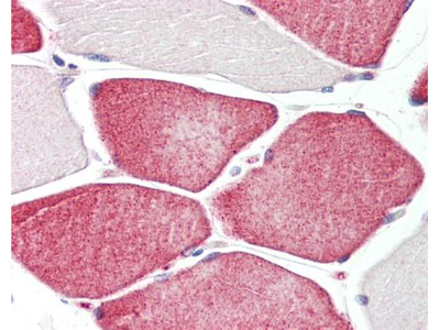 Anti-Tafazzin / TAZ antibody [C2C3], C-term