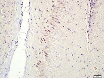 Anti-CNIH3 antibody