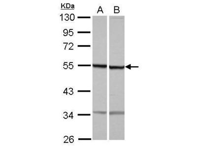 Anti-beta Tubulin antibody [N1C1]