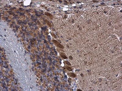 Anti-KBTBD3 antibody