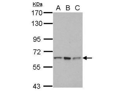 Anti-RNF12 antibody