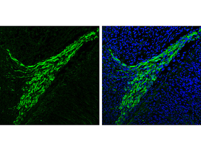 Great SNCA Antibody from GeneTex for Western Blot
