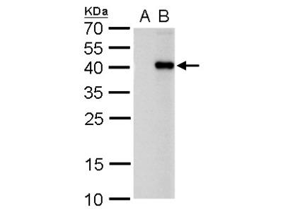 Anti-PITX2 antibody