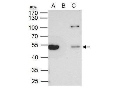 Anti-beta Tubulin 8 antibody [C2C3], C-term