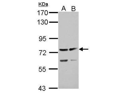 Anti-ADAMTS5 antibody [N3C2], Internal