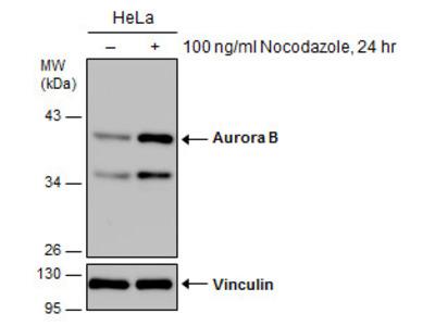Anti-Aurora B antibody