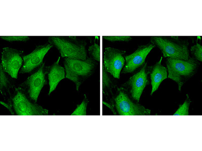 Anti-Tropomodulin 1 antibody