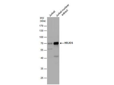 Anti-HELIOS antibody