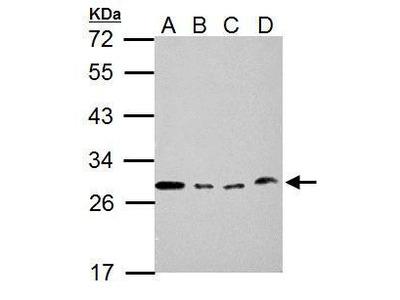 Anti-Loricrin antibody