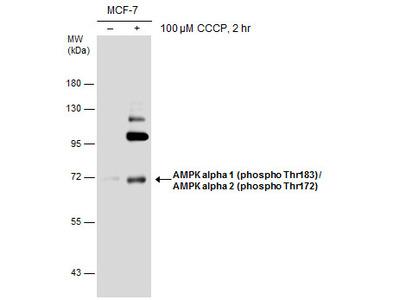 Anti-AMPK alpha 1 (phospho Thr183) + AMPK alpha 2 (phospho Thr172) antibody
