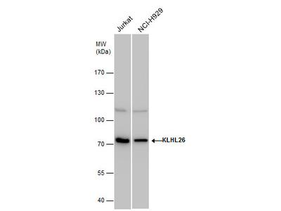 Anti-KLHL26 antibody