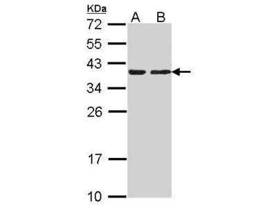Anti-CAPZA2 antibody [N2C3]